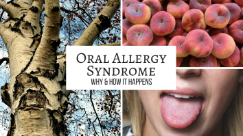 What is Oral Allergy Syndrome_.png